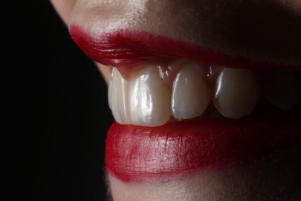 Rūgščių galia jūsų dantims